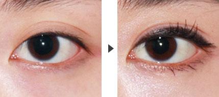 双眼皮手术失败修复大全图片